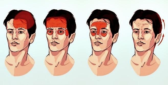 Diferentes tipos de dolor de cabeza